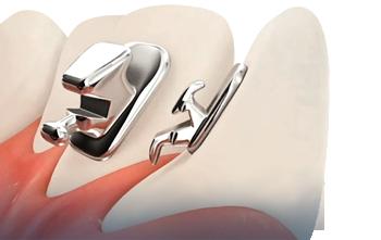 STB2_tecnologie_ADF_ortodonzia