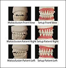 003_metodica_incognito_adf_ortodonzia