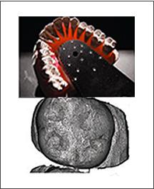 004_metodica_incognito_adf_ortodonzia