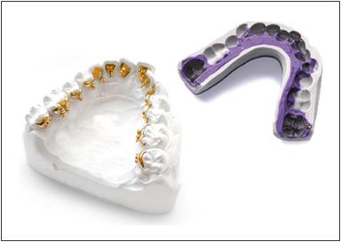 008_metodica_incognito_adf_ortodonzia-copia